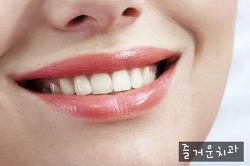 대전임플란트 치아미백치료의 진실