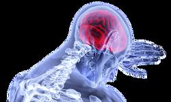 [뇌졸중]뇌졸증(중풍)초기증상
