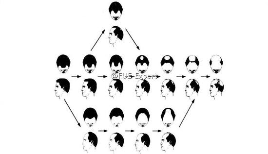 男性脱发的主要原因是...