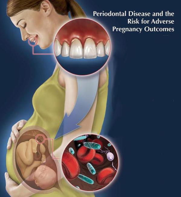 임신 중 치아관리를 제대로 해야할 3가지 이유는? -치주염, 치주질환