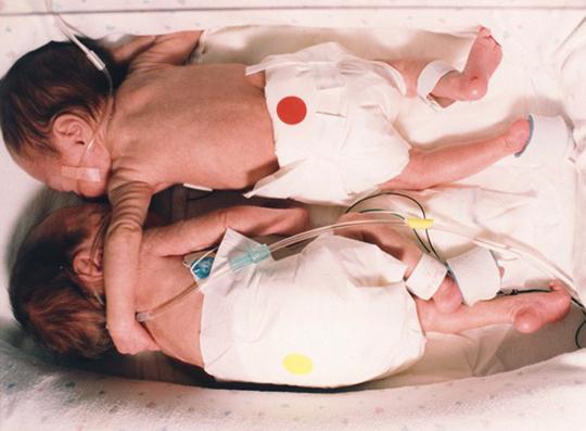 이미지 출처: 구글 이미지 검색,  http://lacomunidad.elpais.com/algodonazul/2009/7/24/23-julio-2009-inmensa-belleza