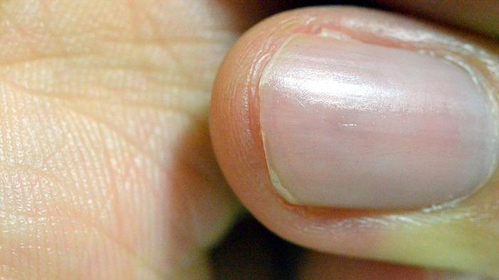 손톱위생, 손톱청결, 손톱위생상태, 손톱위생, 위생관념확립, 위생적인생활 #2